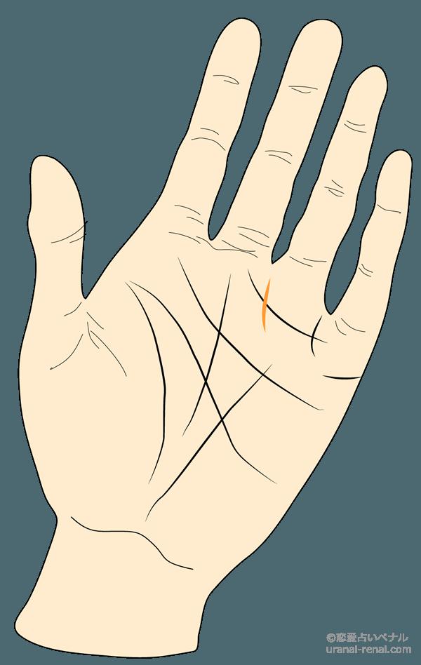 太陽線(金運線)