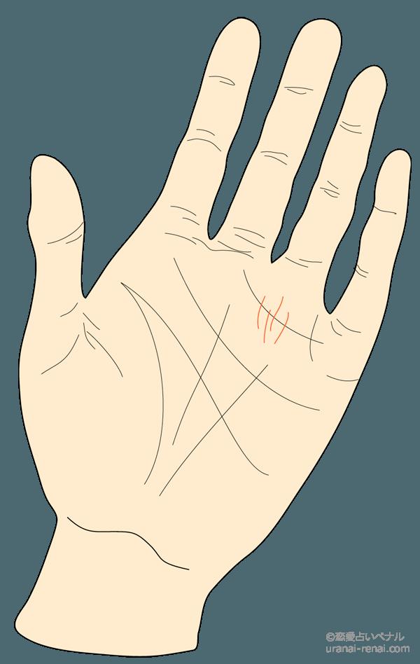 財運線・太陽(金運)線1